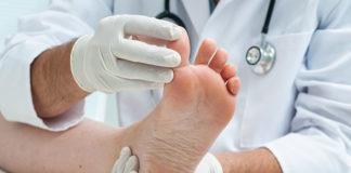 Choroby stóp nie muszą być już zmartwieniem